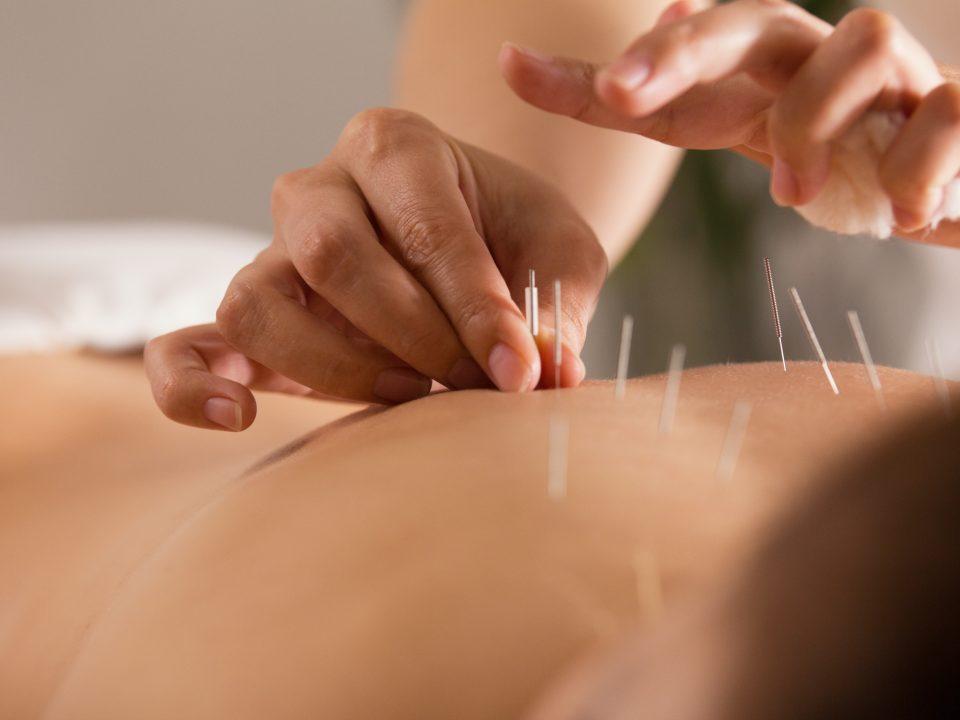 acupuncture2 Ming Tao